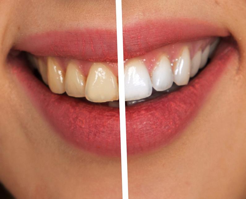 wybielanie_zębów_admed